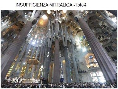 INSUFFICIENZA MITRALICA - foto4
