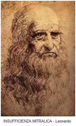 INSUFFICIENZA MITRALICA - Leonardo