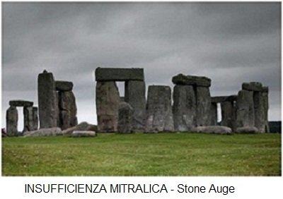 INSUFFICIENZA MITRALICA - Stone Auge